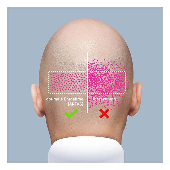 Haartransplantation wann sind die grafts fest
